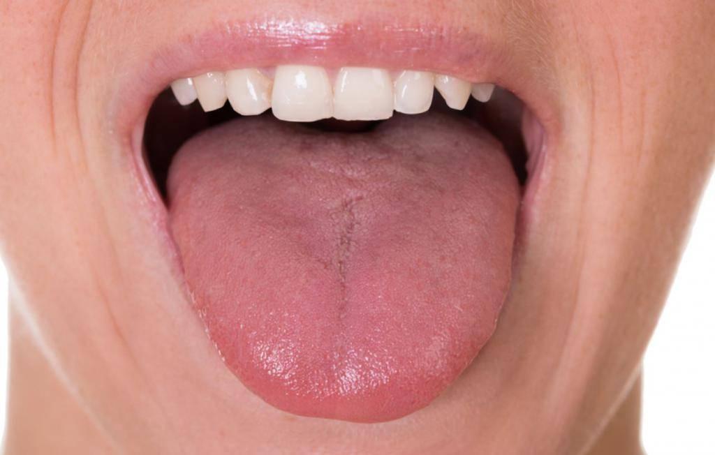 Жжение языка – причины и лечение