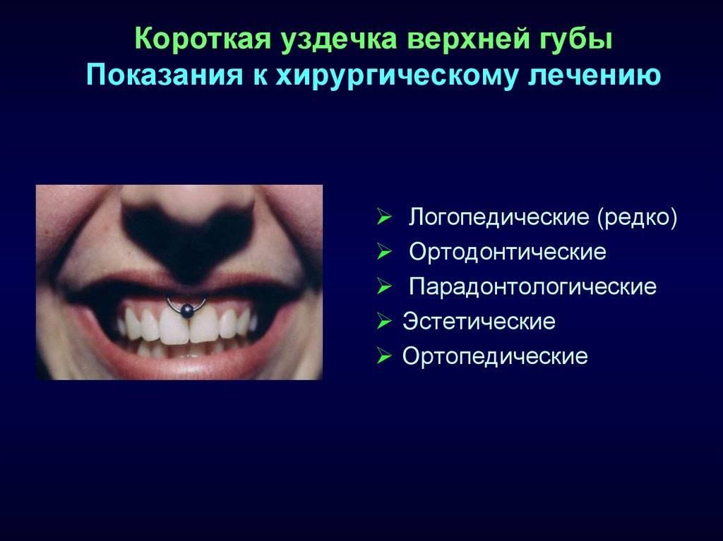 Подрезание короткой уздечки верхней губы – виды и этапы операции