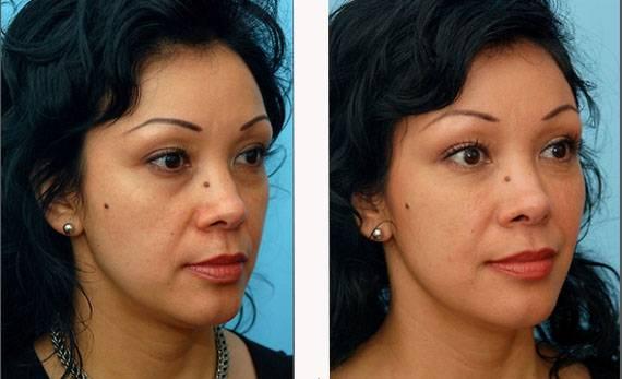 Особенность лица или мечта — впалые щеки: как убрать проблему или визуально сделать толстые щеки стройнее