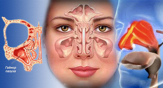 Киста в гайморовой пазухе — симптомы, консервативное лечение или удаление