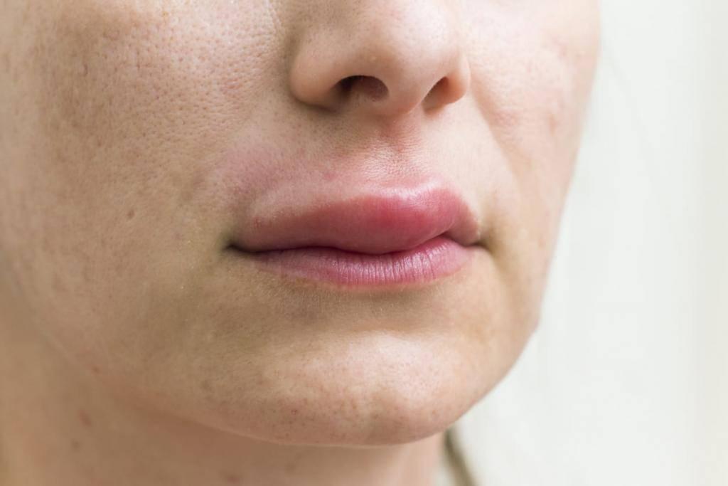 Опухла губа на лице