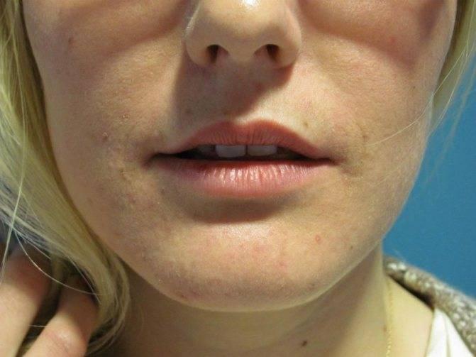 Почему опухла верхняя губа и что делать?