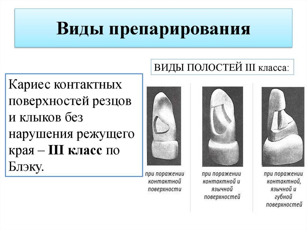 Описание поражений зубов относительно классификации кариеса по мкб 10