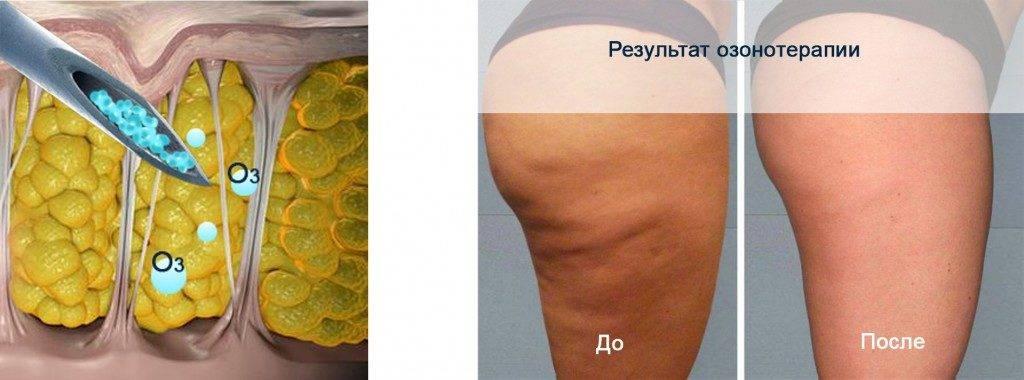 Достоинства и недостатки озонотерапии для похудения