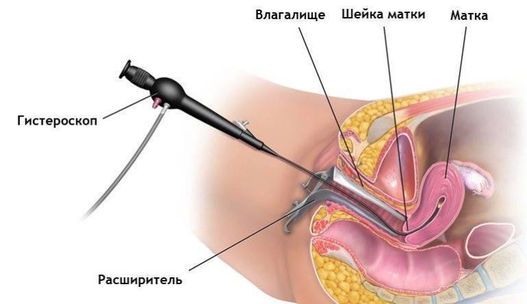 Причины образования полипов в мочеточнике у женщин: лечение и профилактика