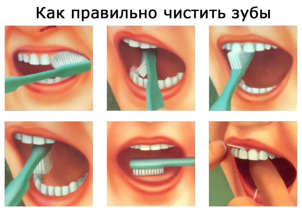 Как правильно ухаживать за полостью рта и зубами