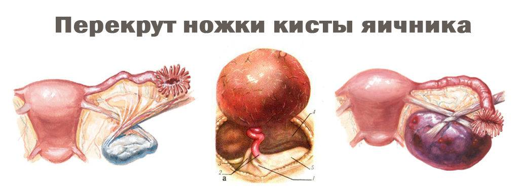 Как проявляет себя киста левого яичника