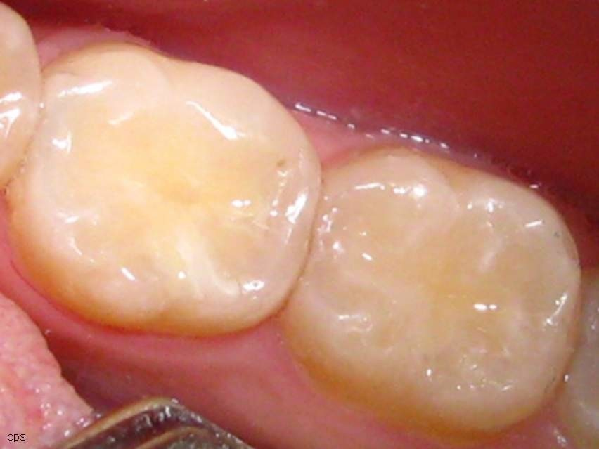 Сколько времени нельзя есть после пломбирования зуба