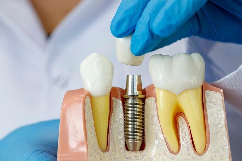 Имплантация зубов под общим наркозом