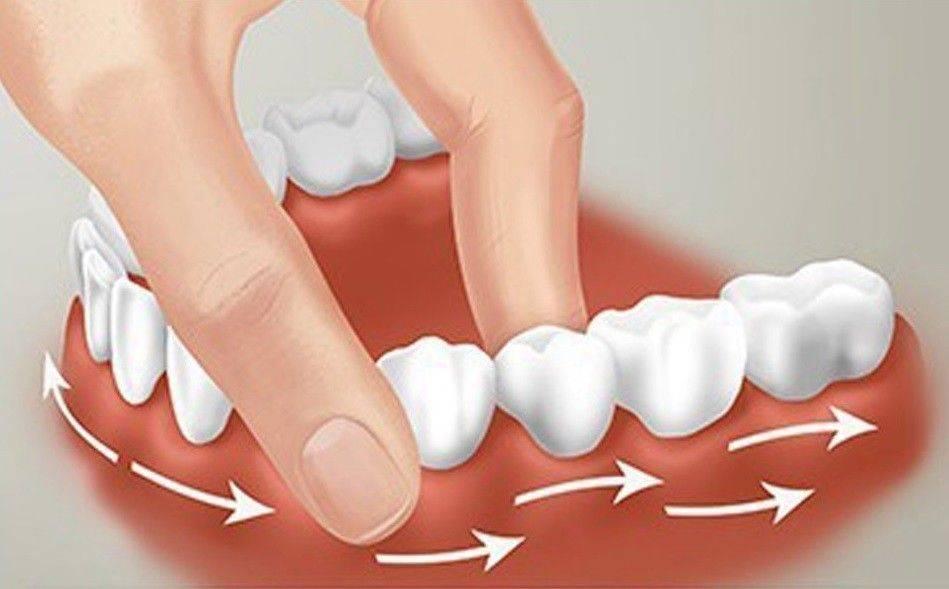 Что делать, если шатается зуб?