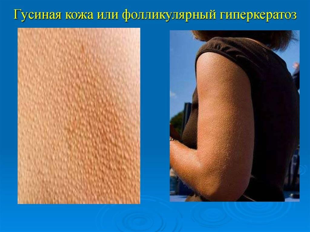 Как избавиться от гусиной кожи на ногах