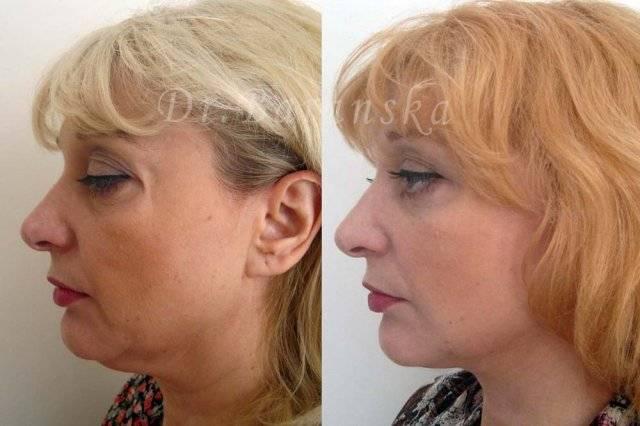 Круговая подтяжка лица – видимый эффект и чего ждать после операции