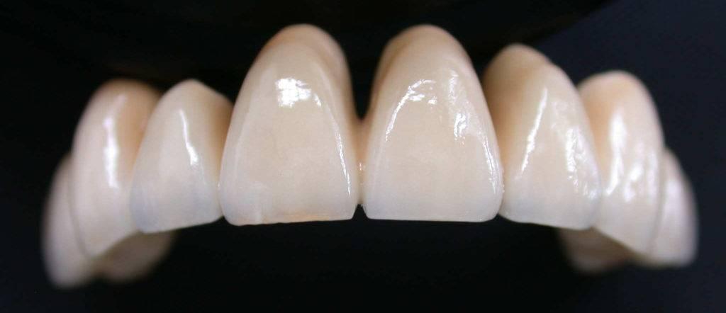 Пластмассовые коронки на передние зубы: отзывы и цены