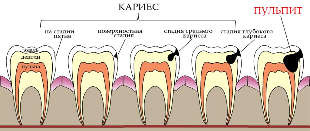 Если не лечить зубы вовремя – к чему это приведет?