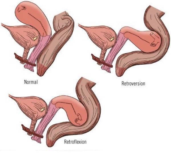 Что значит антефлексио положение матки и насколько это опасно?