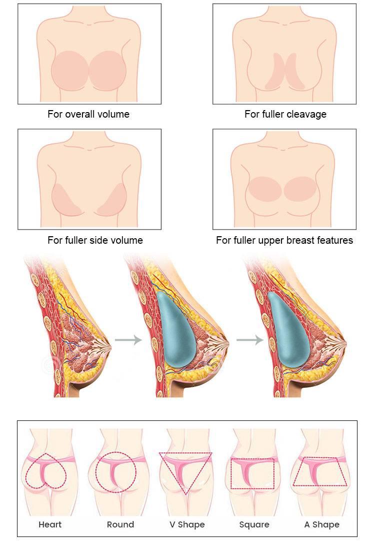 Уколы гиалуроновой кислоты для лица: результат процедуры и правила проведения