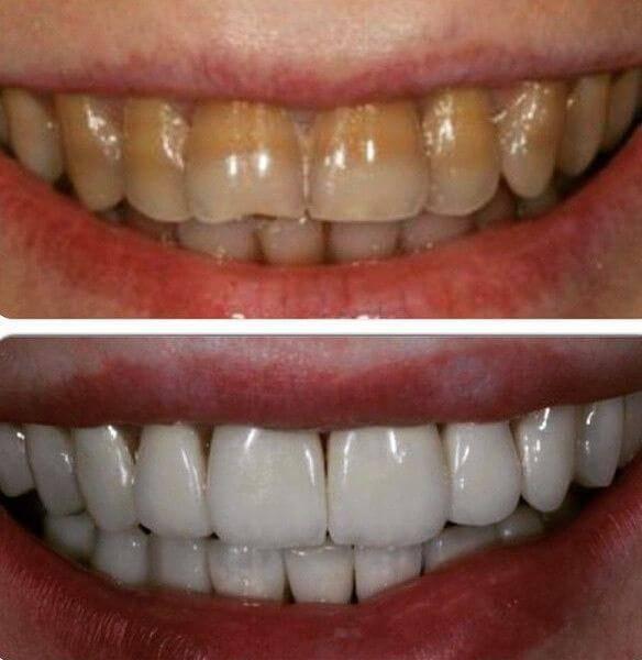 Отбеливание тетрациклиновых зубов: симптомы, диагностика и способы лечения с фото