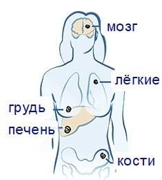 Куда метастазирует рак молочной железы?