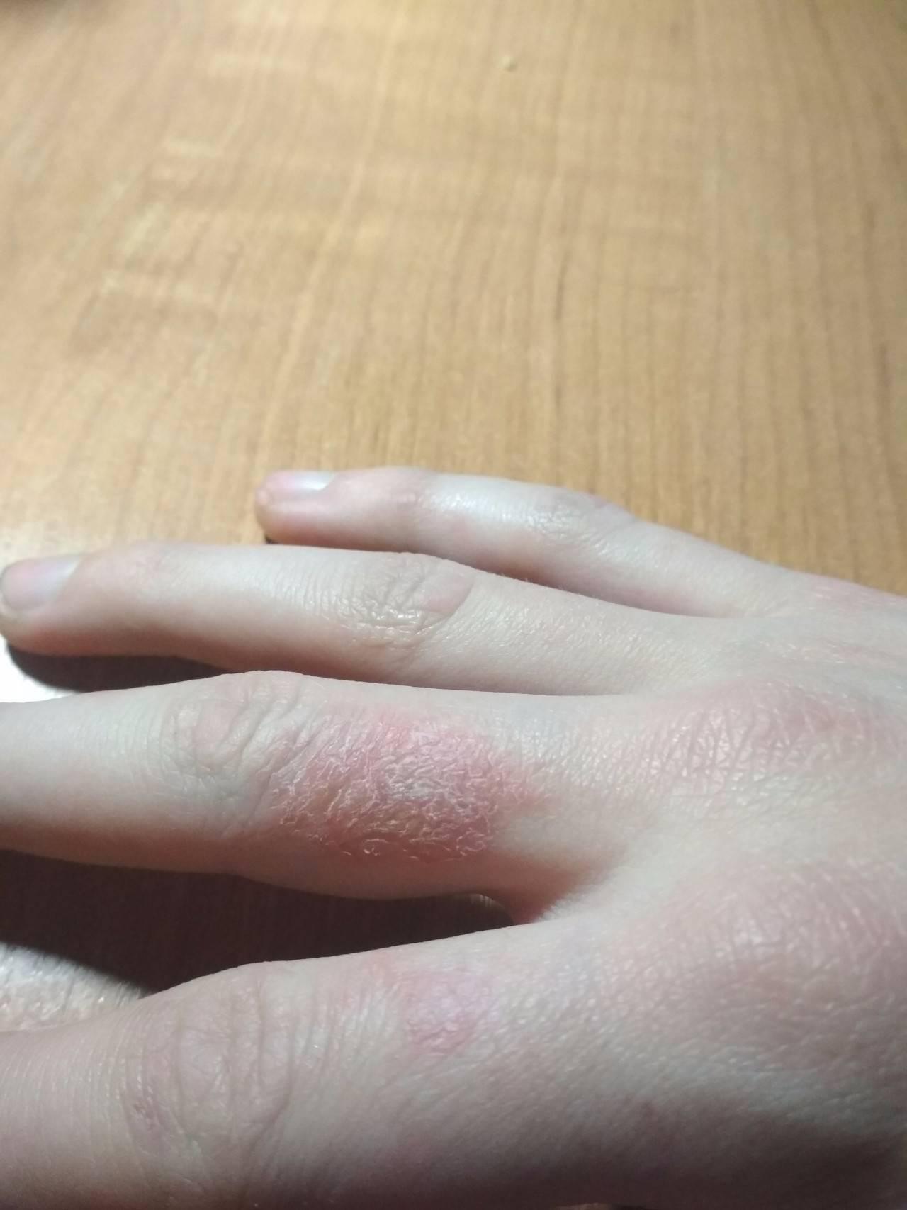 Причины и лечение нехватки витаминов при сухой коже рук