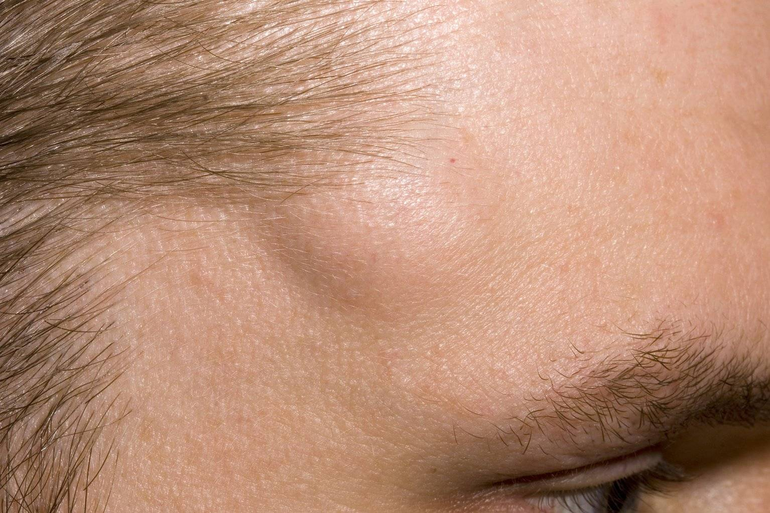 Атерома волосистой части головы: методы лечения у детей и взрослых