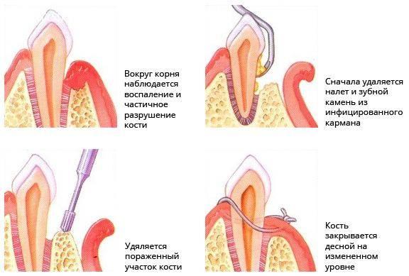 Болит зуб после разреза десны