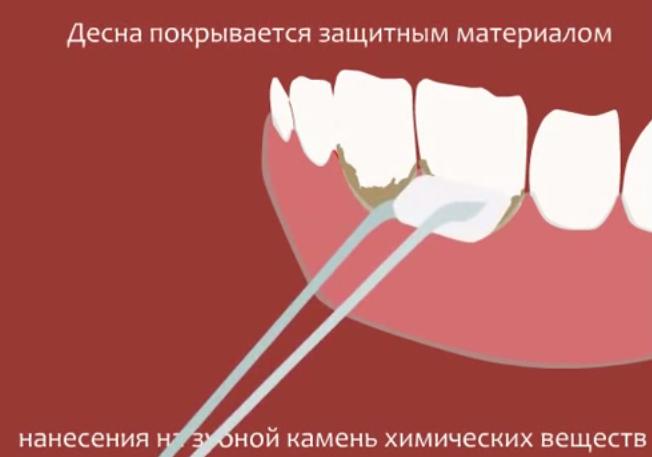 Снятие зубного камня лазером – плюсы и минусы, где пройти в москве, цены