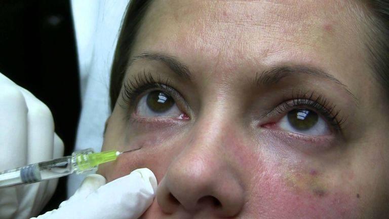 Носослезная борозда: коррекция филлерами или блефаропластика?