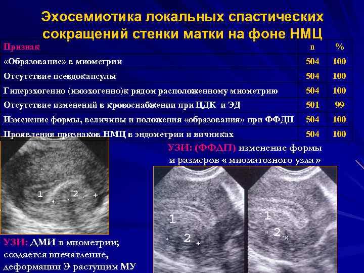 Утолщение задней стенки матки при беременности. причины и лечение утолщения стенки матки