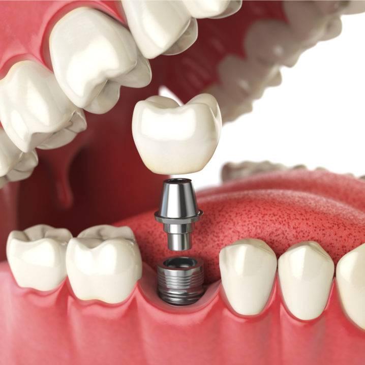 """Имплантация зубов """"все на четырех"""" или all on 4"""