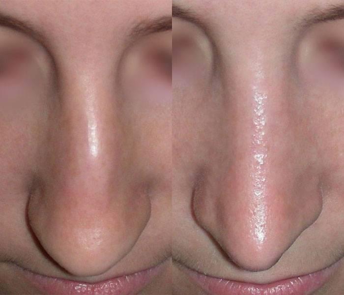 Искривление перегородки носа: осложнения и лечение
