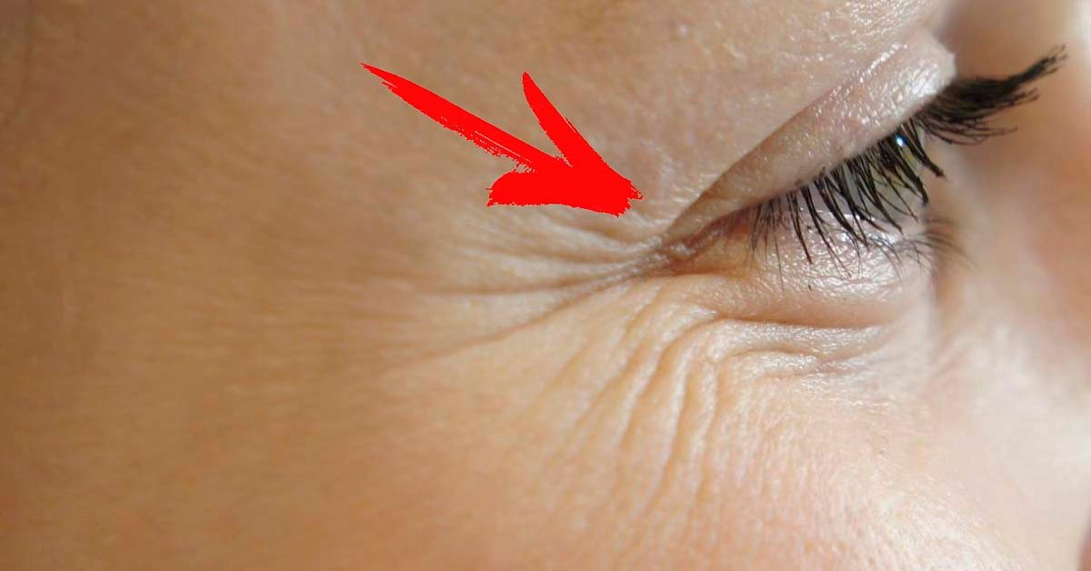 Как избавиться от морщин вокруг глаз: обзор эффективных методик