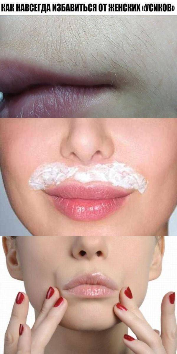 Как избавиться от волос над верхней губой?