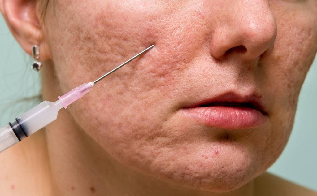 Шрамы на лице без причины