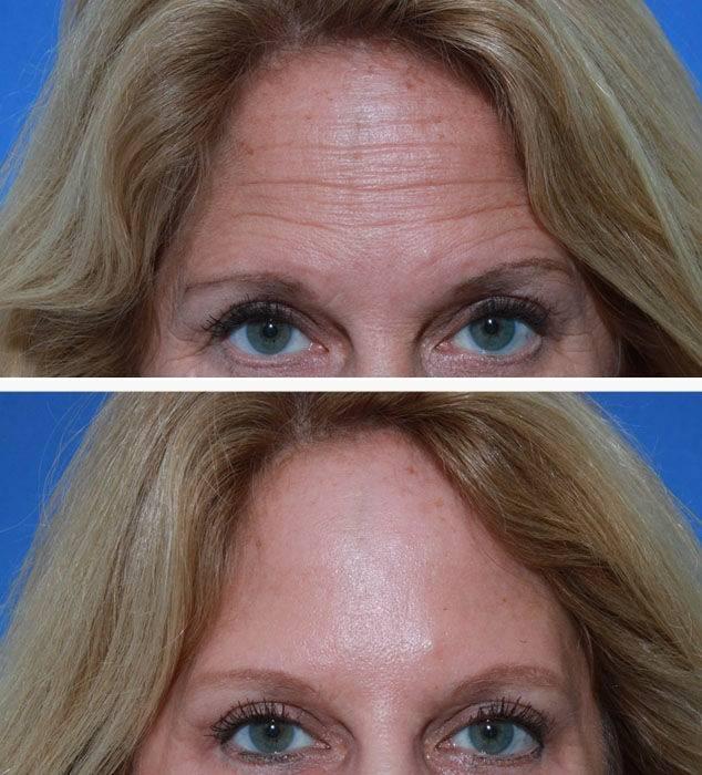 Реабилитация после уколов ботокса — рекомендации косметологов