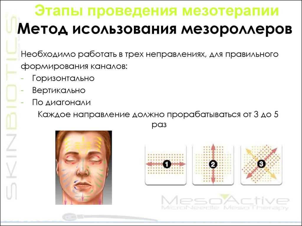 Техники мезотерапии — сравнительное описание методик, области применения