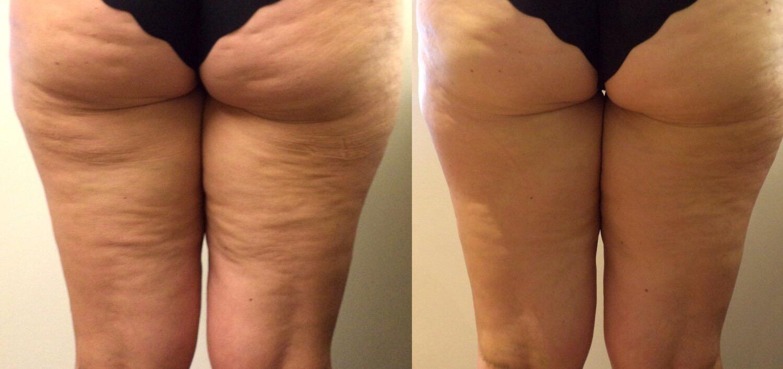 Как отзываются о прессотерапии: до и после процедуры