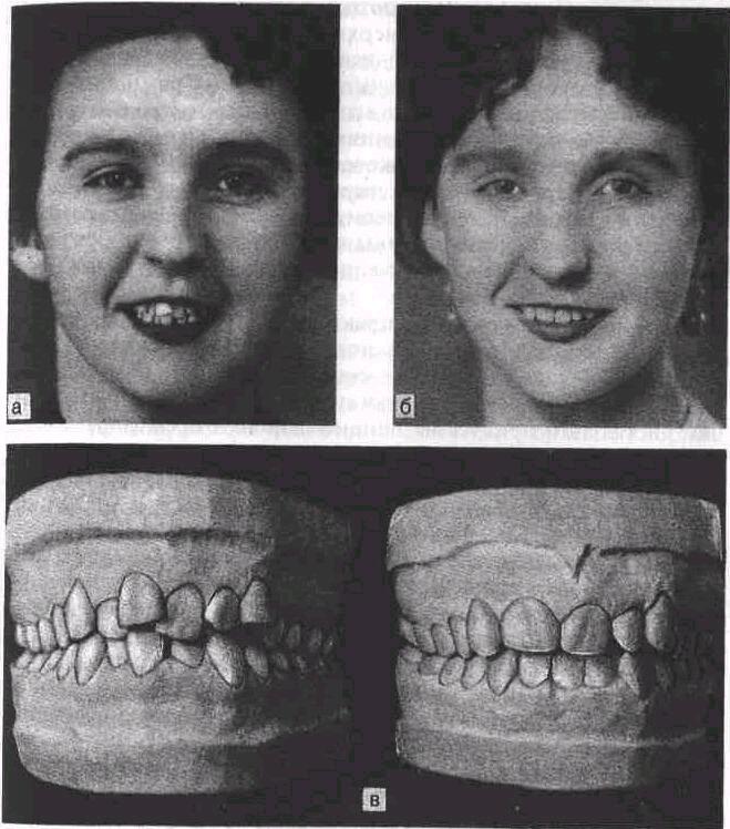 Прогнатия верхней и нижней челюсти