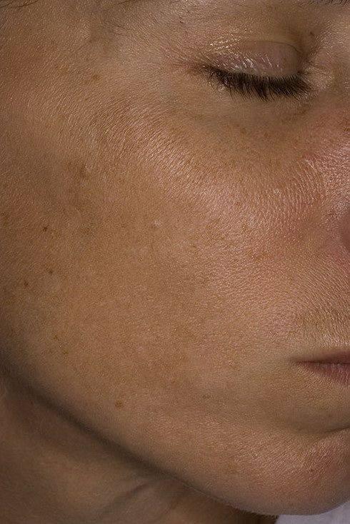 Хлоазма на лице – причины, симптомы и методы лечения заболевания