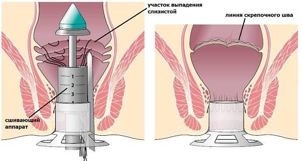 Операция при опущении/выпадении матки: показания, методы, результат