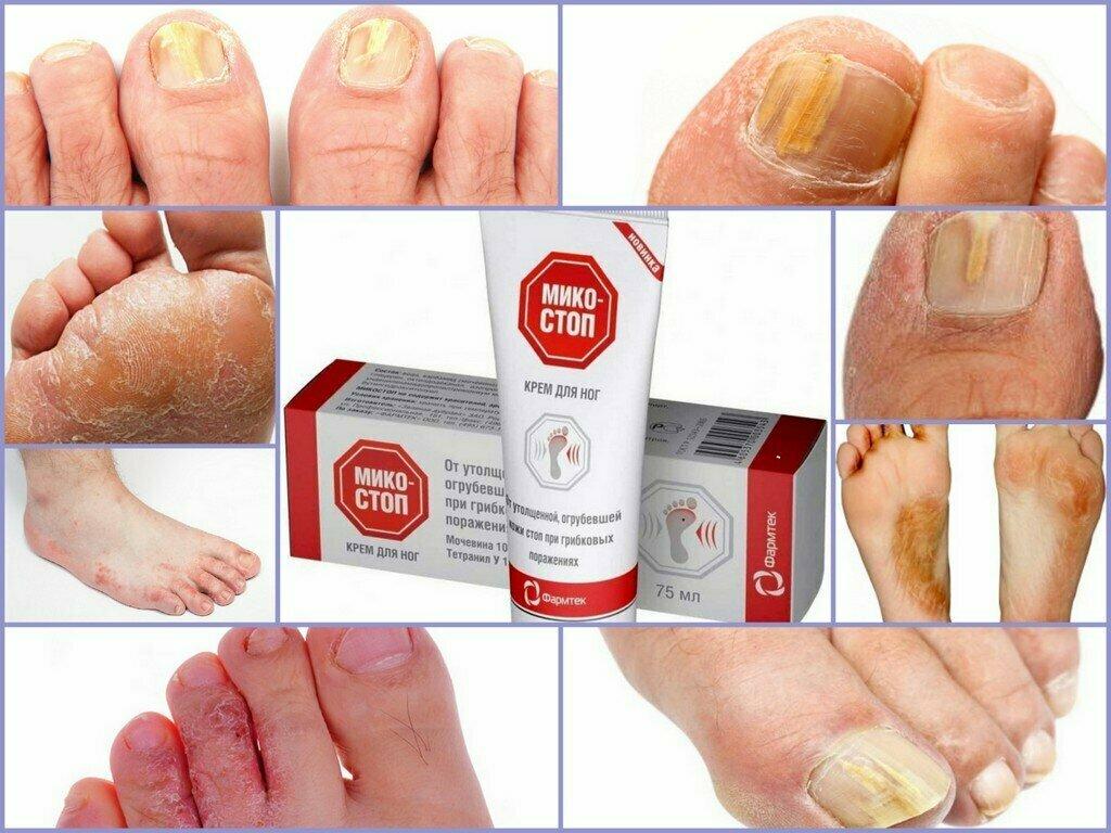 Онихомикоз: фото, лечение ногтей на ногах и руках