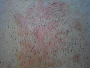 Как выглядит аллергия на прокладки фото