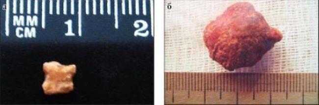 Симптомы слюннокаменной болезни (сиалолитиаза) и лечение железы посредством удаления камней