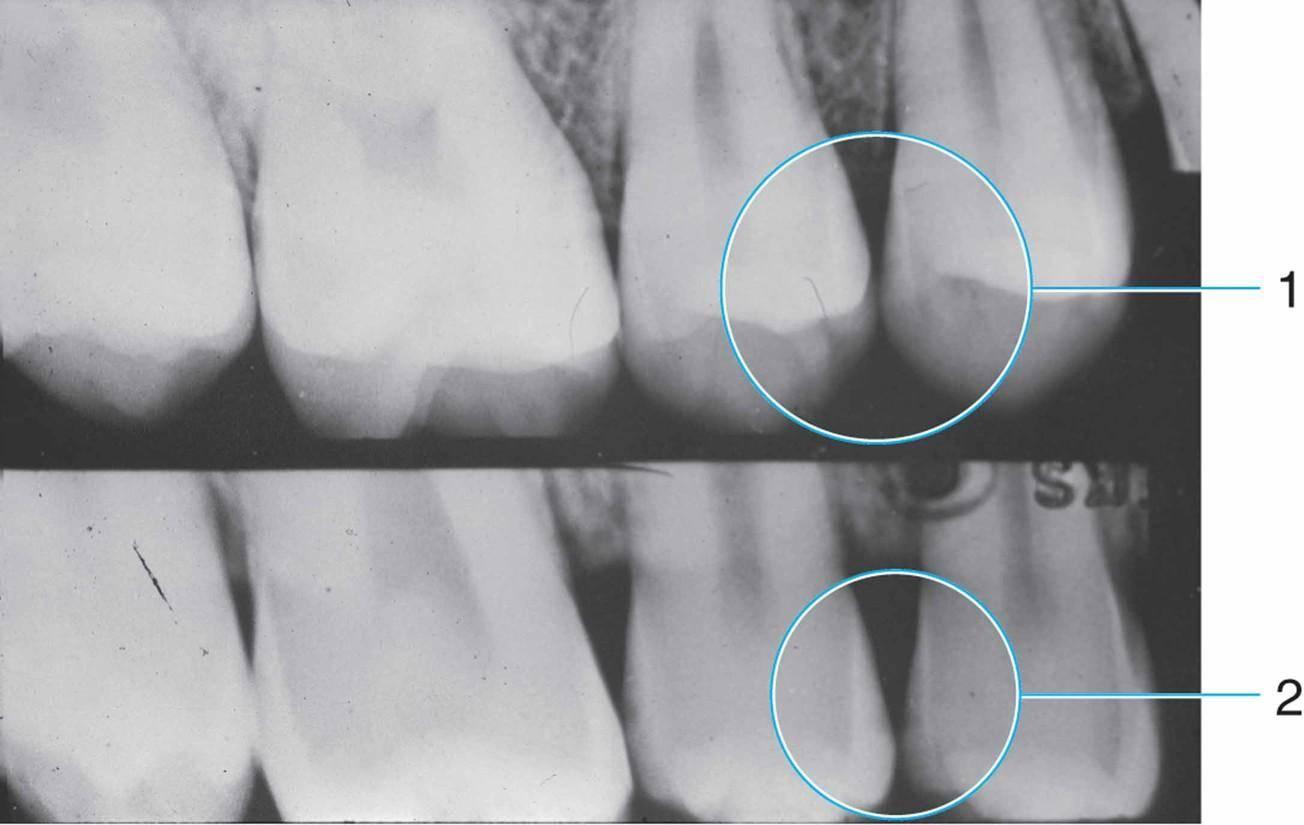 Стадии кариеса зубов и их диагностика