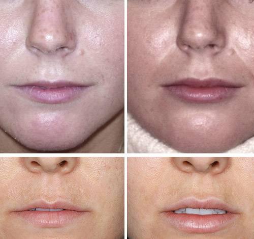 Что такое контурная пластика губ и как проходит процедура?
