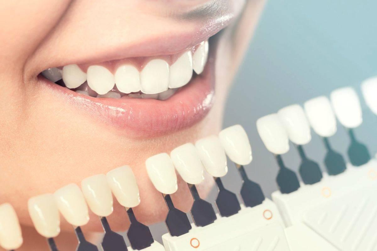 Сколько болят зубы после отбеливания