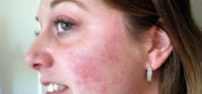 Красные шелушащиеся пятна на лице: 12 причин, методы лечения, профилактика
