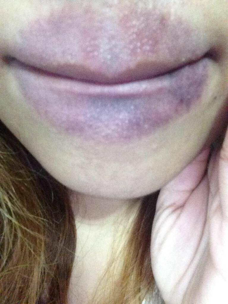 Как убрать синяк на лице