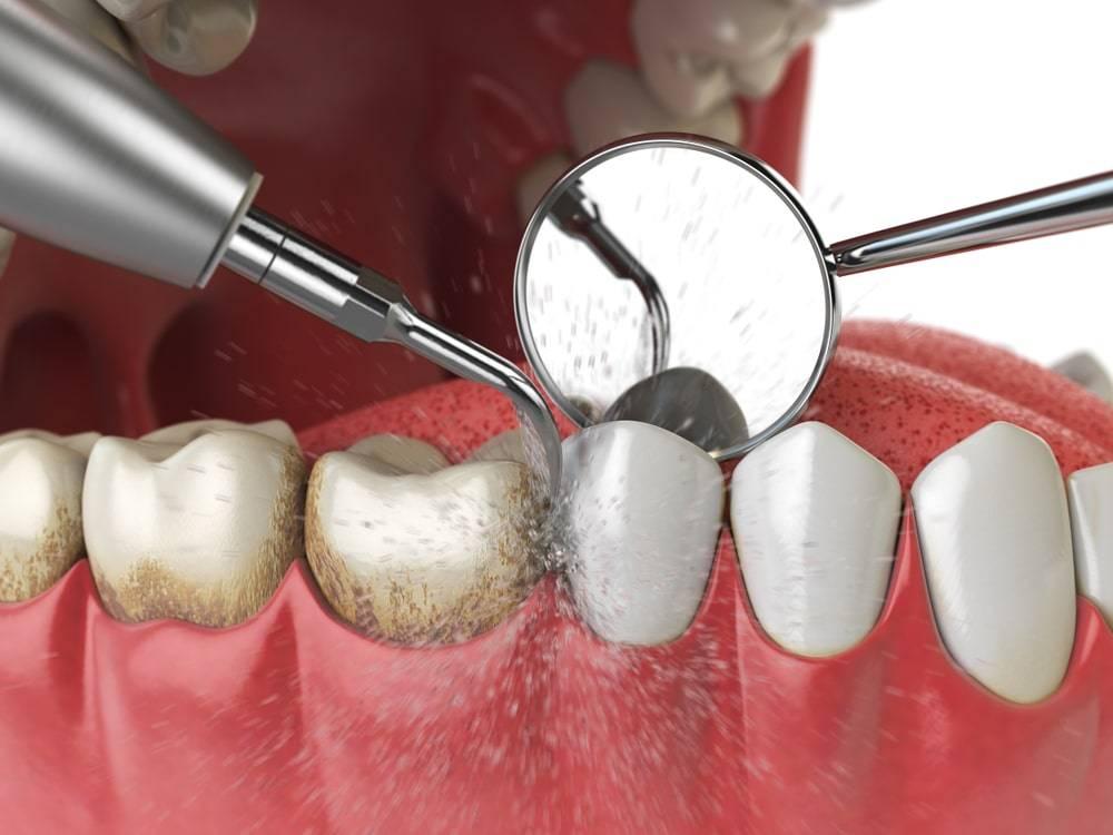 Профессиональная гигиеническая чистка зубов детям в стоматологии