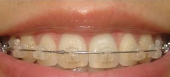 Зубной протез натирает десну: что делать? зубные протезы нового поколения без неба