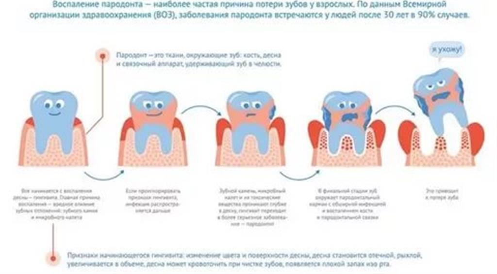 Адентия — частичное или полное отсутствие зубов: что это такое, почему происходит?